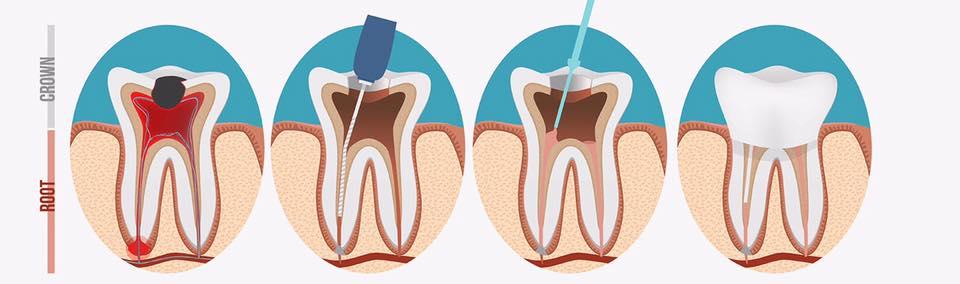 post wortelkanaal bij een olifant tandarts hilverda