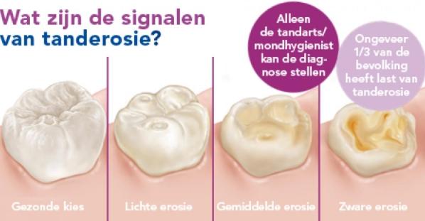 post frisse fruitdrankjes tandarts hilverda 4